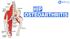 How Do You Manage Osteoarthritis of the Hip?