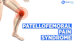 Do you have Patellofemoral Pain Syndrome? Here's how to treat Runner's Knee