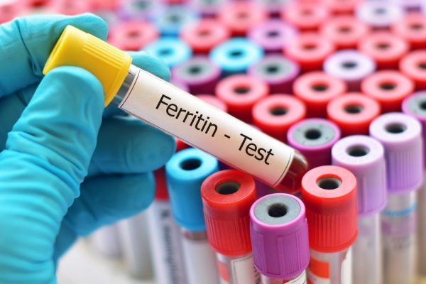 What Is Ferritin and What a Ferritin Test Involves