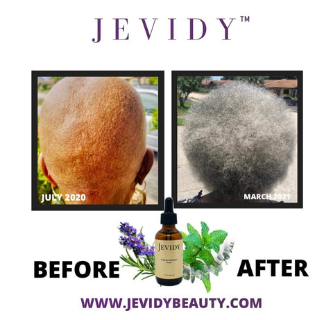 GROWTH RESULTS WITH JEVIDY SCALP REVITALIZATION DROPS