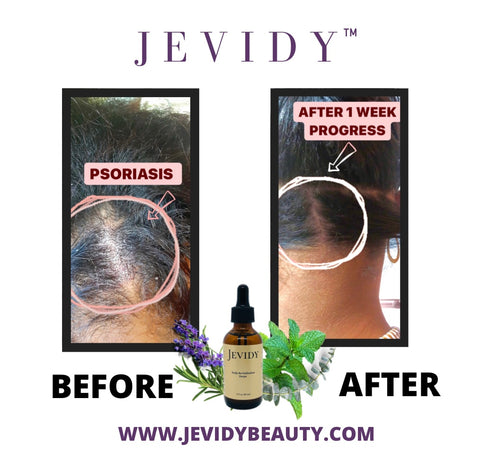 GROWTH RESULTS WITH JEVIDY SCALP REVITALIZATION DROPS 1 week