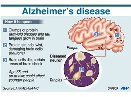 alzheimer's disease and turmeric