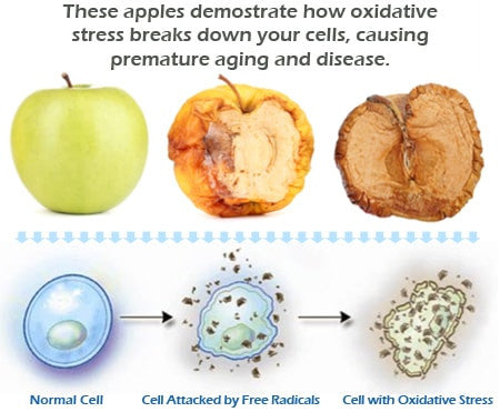 what is oxidative stress