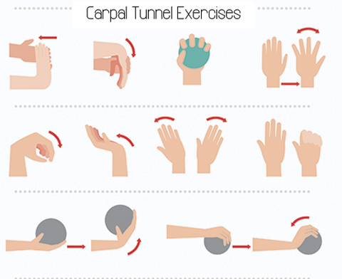 Carpal Tunnel Syndrome: Remedies & Exercises