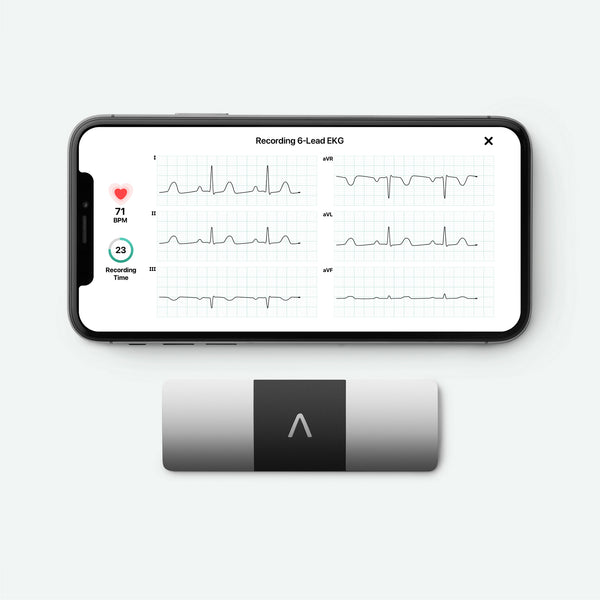 KardiaMobile 6L with iPhone showing EKG tracing