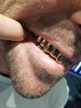 Load image into Gallery viewer, 20 Pack Grillz- 10 on 10
