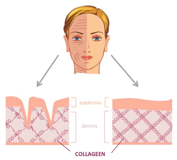 collagen2.png