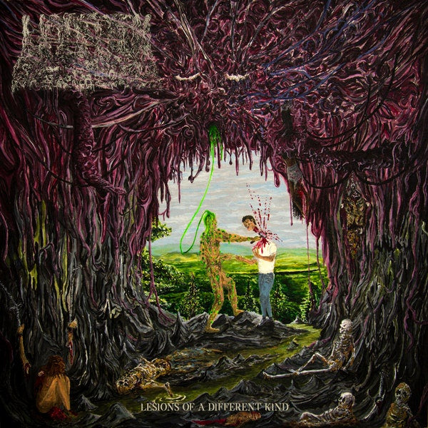 UNDEATH-LESIONS OF A DIFFERENT KIND LP *NEW*