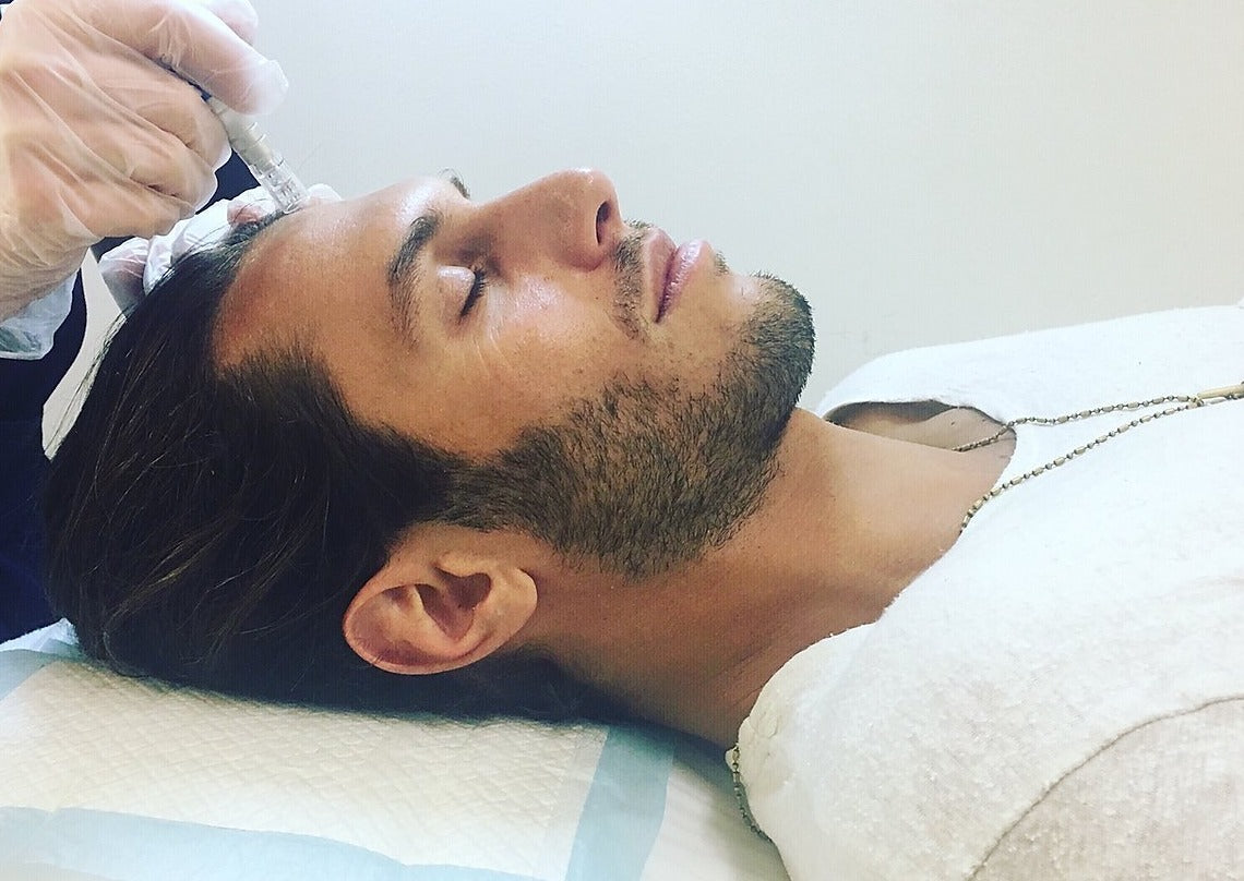 Mens Skin Needling Treatment Plan over 3 Months - Beauty Bar Therapy
