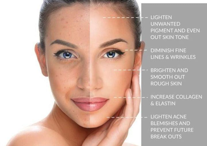 Skin Renewal Program x 3 Peels - Beauty Bar Therapy