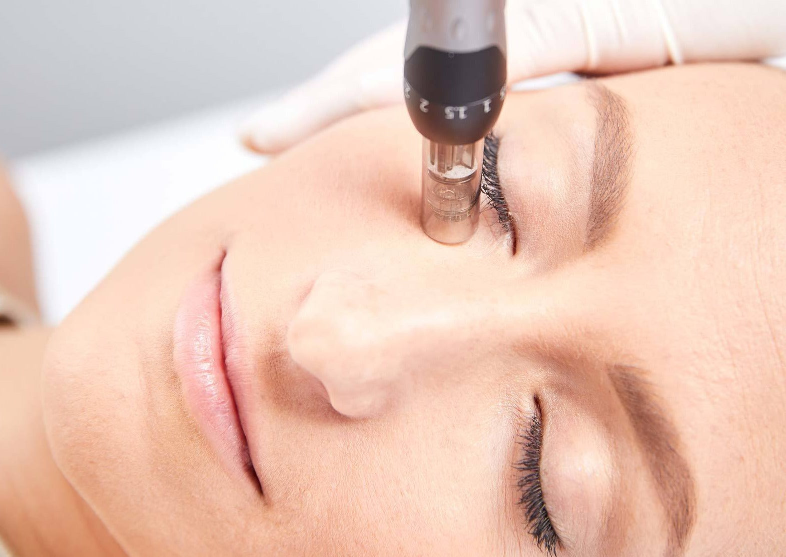 Skin Needling Treatment Plan over 3 Months - Beauty Bar Therapy