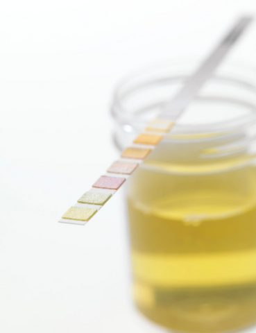A delta-8-THC drug test that you can take at home