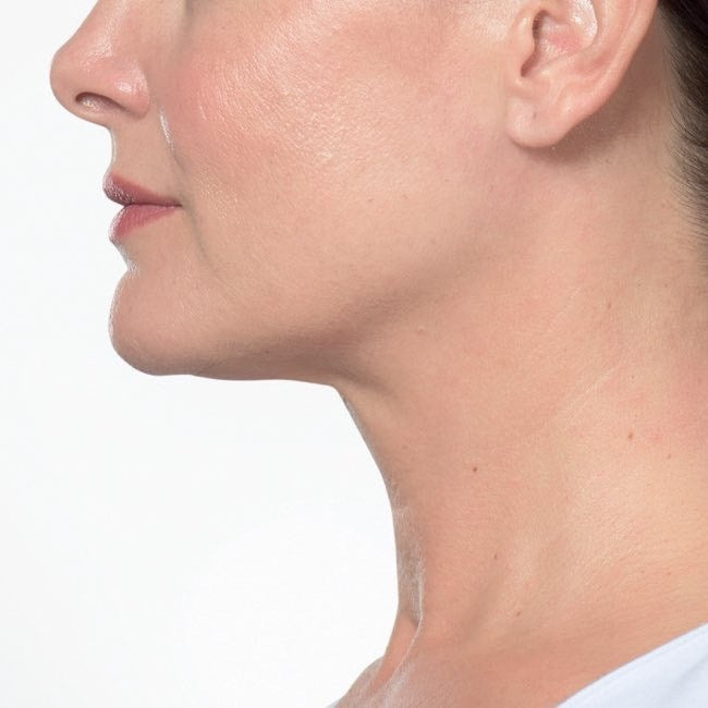 Injectable Double Chin Reduction After