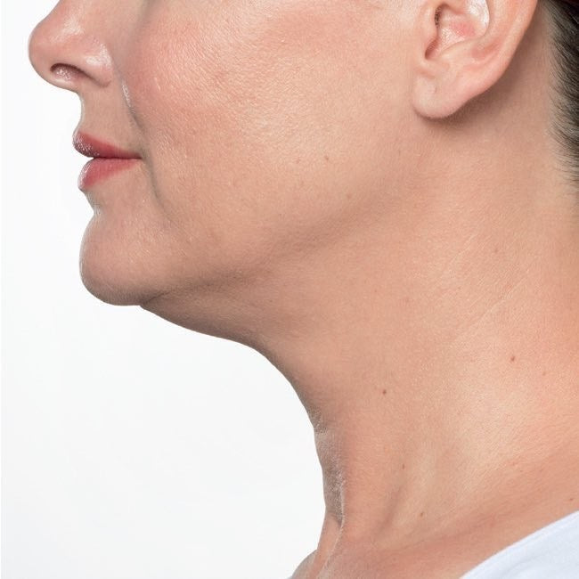 Injectable Double Chin Reduction Before