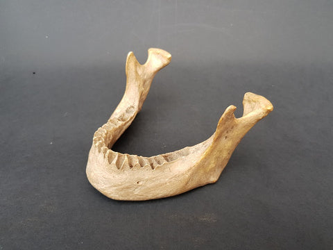 Real human jawbone medical specimen