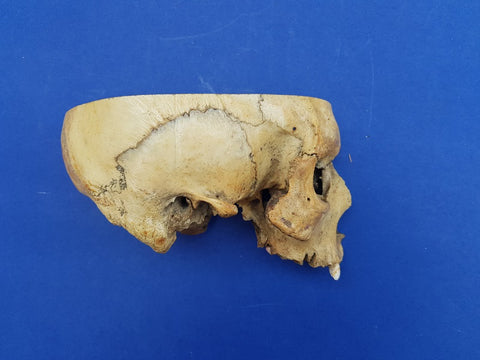 Real human partial medical skull, sagittal section