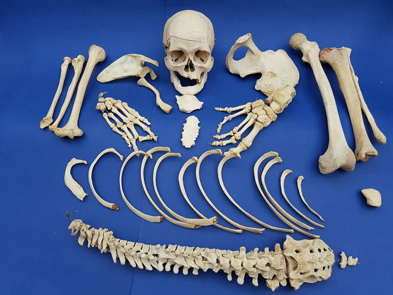 Vintage real human half medical skeleton for sale