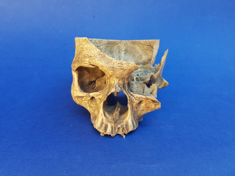 Antique partial real human skull medical specimen for sale