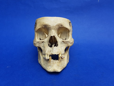 Antique real human partial medical skull