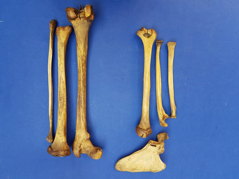 Antique real human medical articulated arm and leg bones.