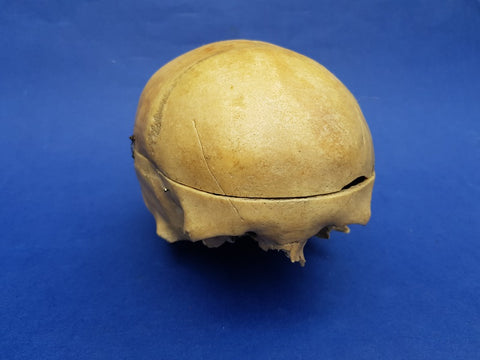 Real human partial skull medical specimen scarred frontal.