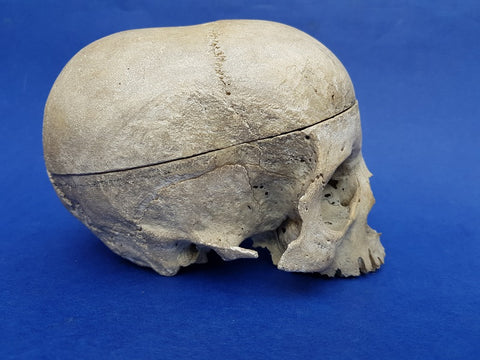 Very unusual, antique real human partial skull medical specimen showing scaphocephaly / dolichocephaly