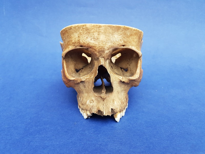 Partial real human medical skull for sale, great colour and patina