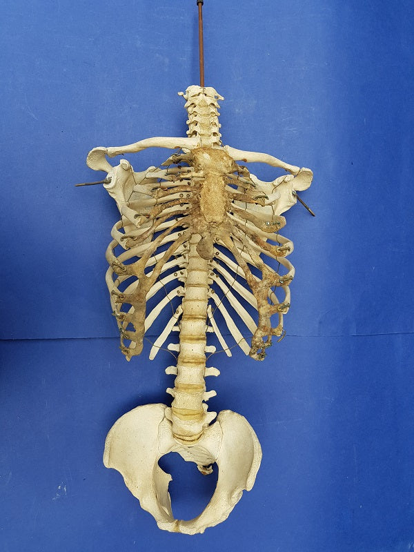 Antique real human partial articulated skeleton thorax, pelvis and sacrum for sale