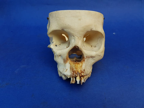 Partial real human skull medical model