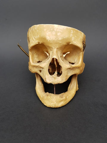 Real human partial skull medical specimen