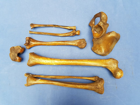 Antique medical real human leg and arm bones with half pelvis