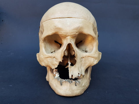 Real human skull vintage medical specimen
