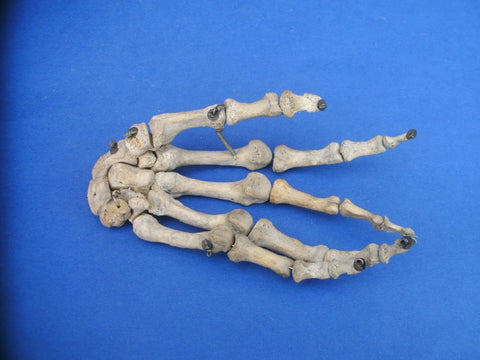 Antique real human hand medical specimen