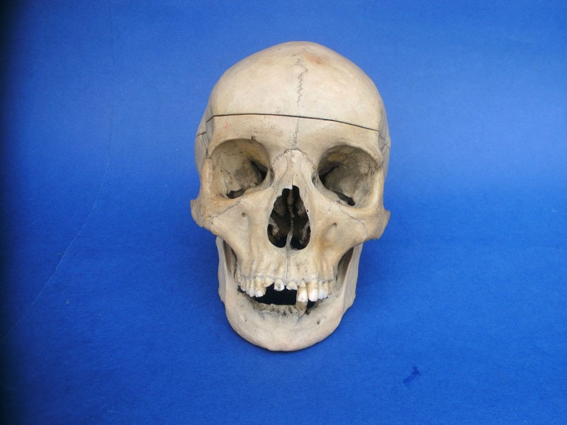 Antique medical real human half skeleton in box – The