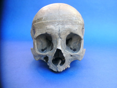 Very old medical real human partial skull