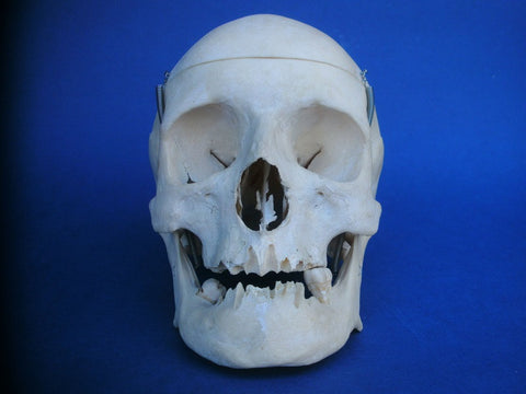 Vintage medical real human skull Auzoux Paris