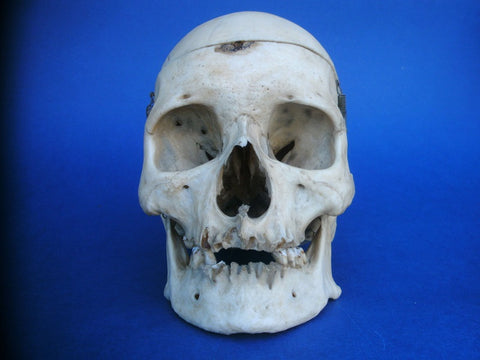 Vintage real human skull medical specimen.