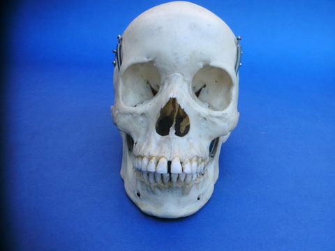 Vintage real human medical skull with excellent dentition in original box.