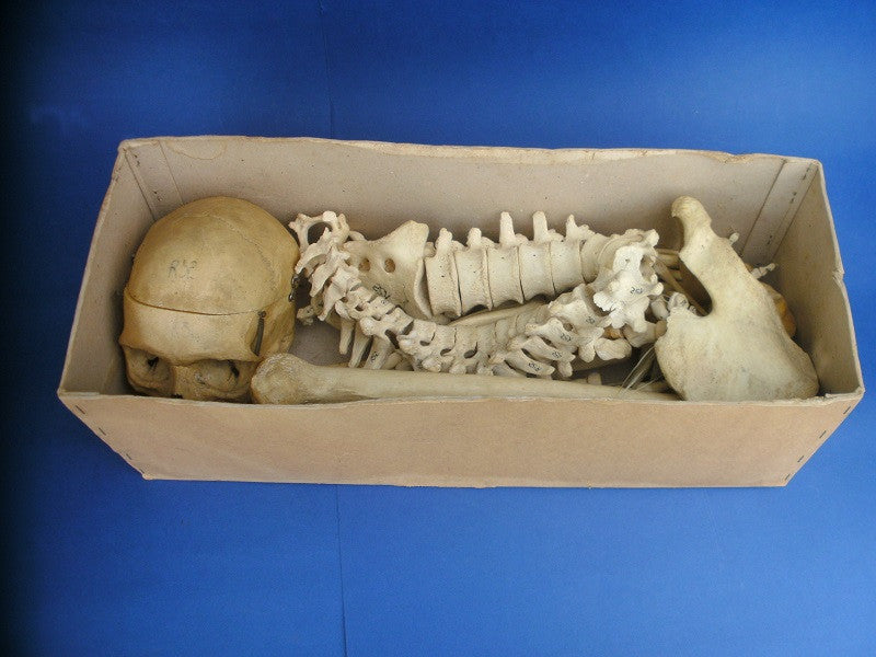Vintage real human partial medical skeleton in box