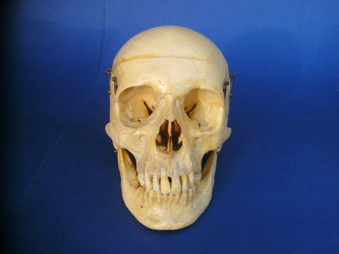 Real human medical skull with excellent dentition.