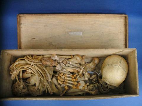Antique real full human medical skeleton in box. Millikin and Lawley.