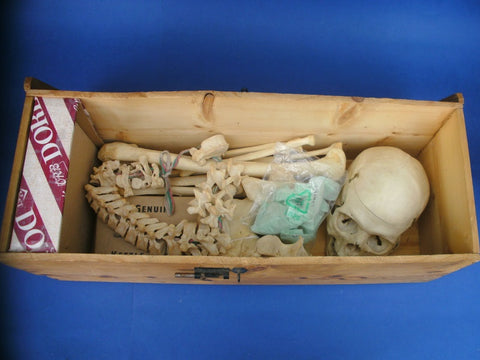 Real human partial medical skeleton Donald Ferrier Edinburgh in perfect condition.