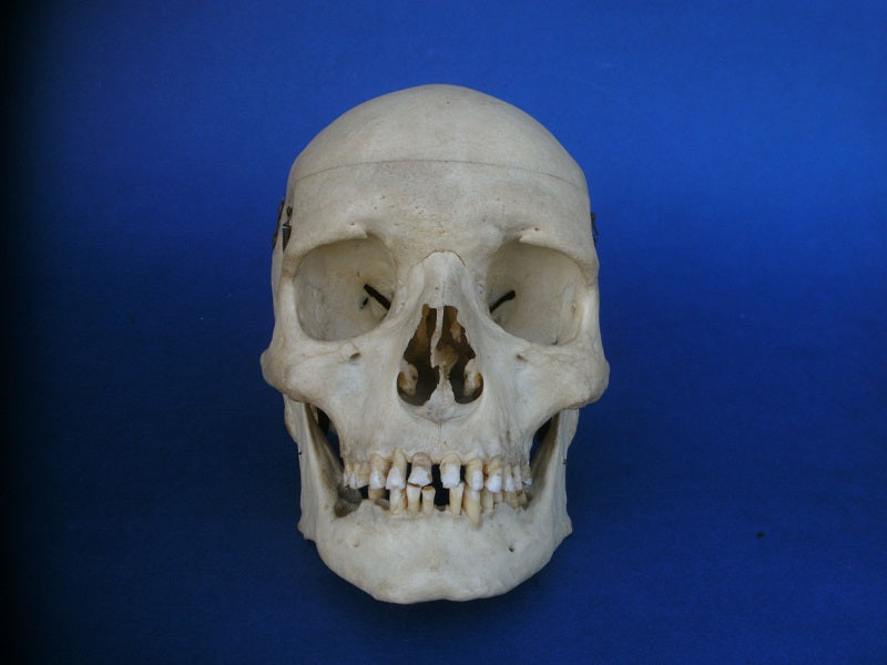 Vintage medical / dental real human skull for sale
