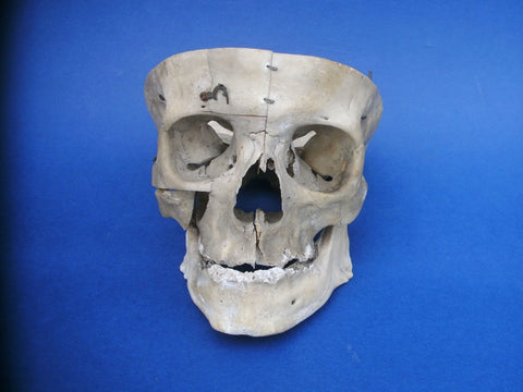 Antique real human medical partial skull sagittal section with exposed sinus