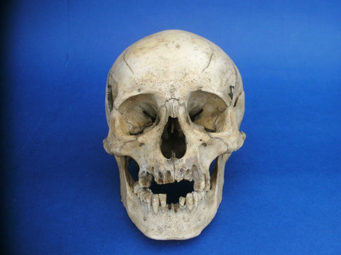 Antique real human skull medical specimen uncut calvarium