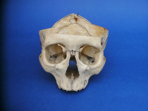old medical partial real human skull