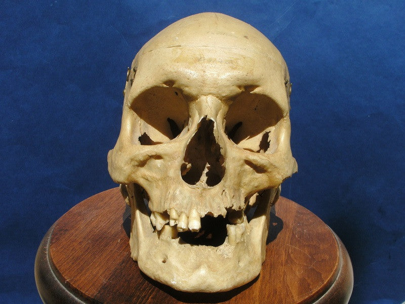 Real Human skull antique medical specimen