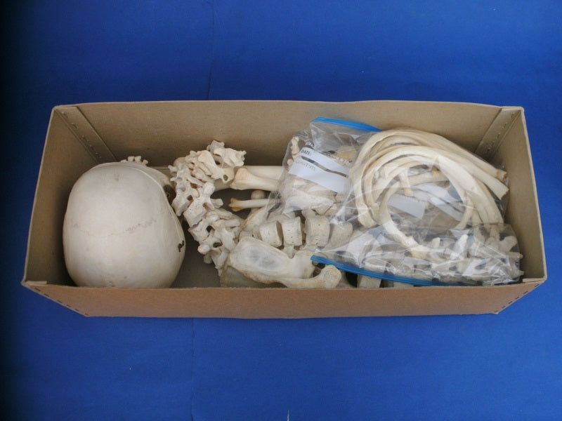 Real human medical half skeleton in box good condition for sale