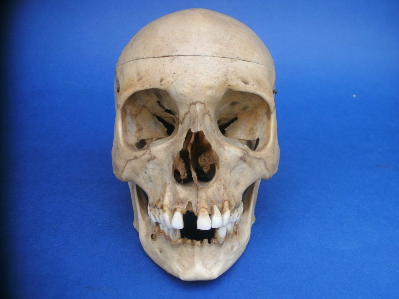 Antique real human medical skull with great patina for sale