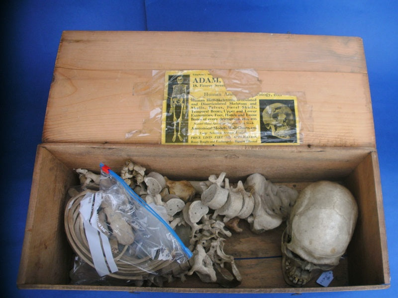 Antique real human medical half skeleton in box for sale Adam Rouilly